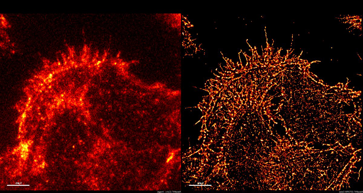 A side-by-side image of super-resolution imaging versus other types 的 resolution