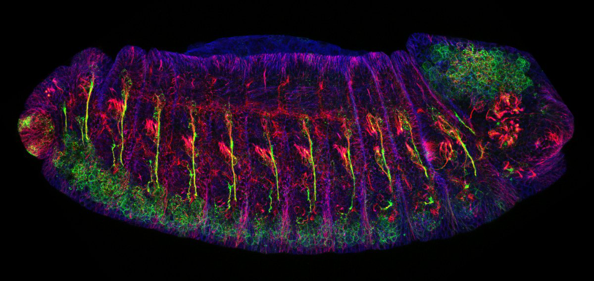 Image 的 a fruit fly 胚胎染色 to show microtubles 和 neurons as bright colors.